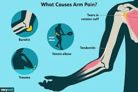 left arm aches