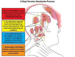 ache at base of head