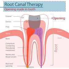 soreness after root canal