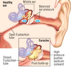 right ear ache