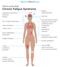 body aches and fatigue
