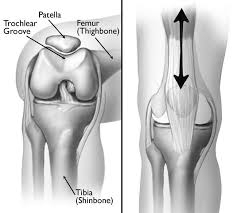 dull ache in knee