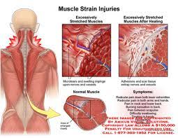 chronic muscle aches