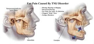 ear and jaw ache