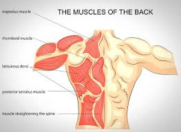 chronic muscle soreness