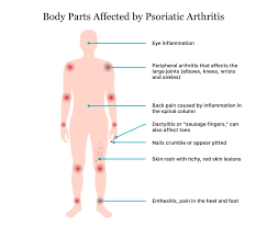 body joint ache causes