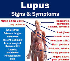 body ache with lupus